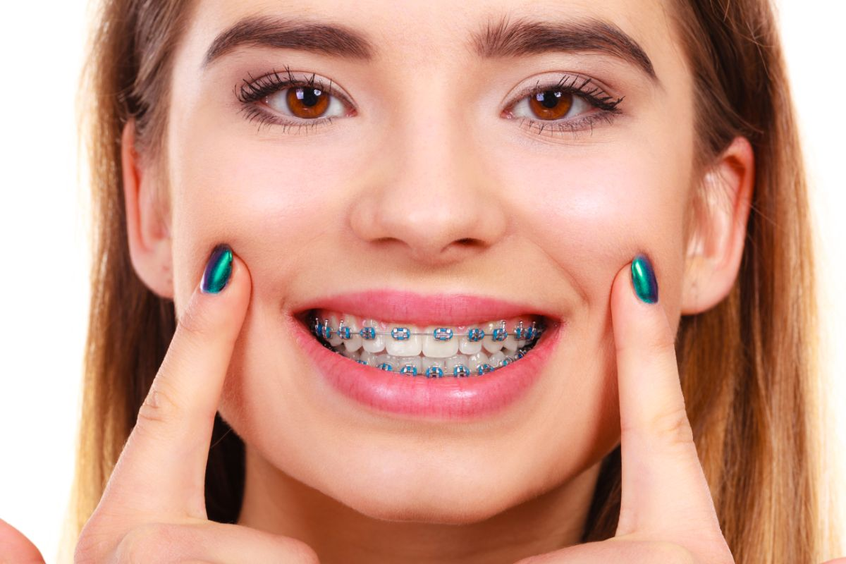 Bad Habits to Break Whether You Have Braces or Not
